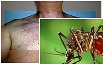 Zika irasatira Sida kubukana