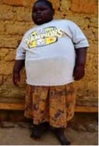 Obésité ventre 2