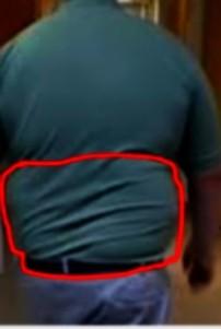 obésité1